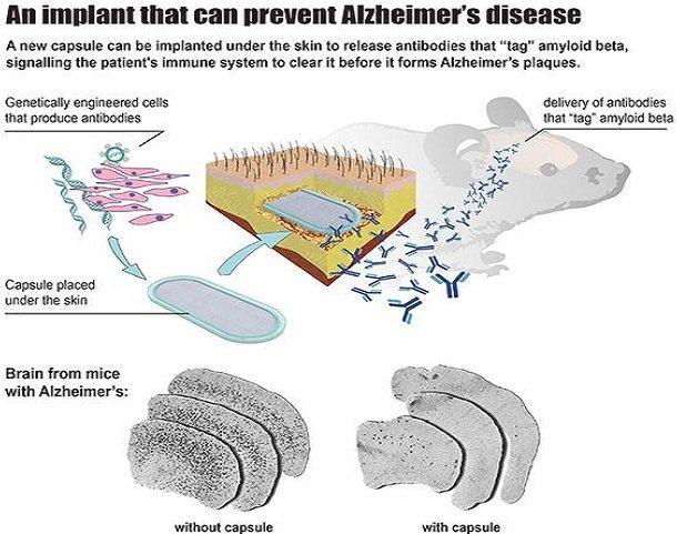 implante alzheimer