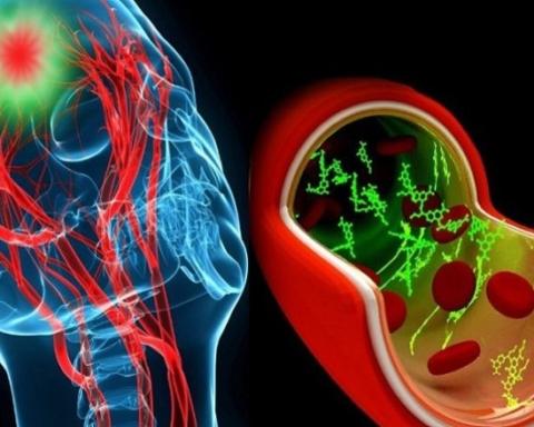 lesiones-cerebrales-tecnologia
