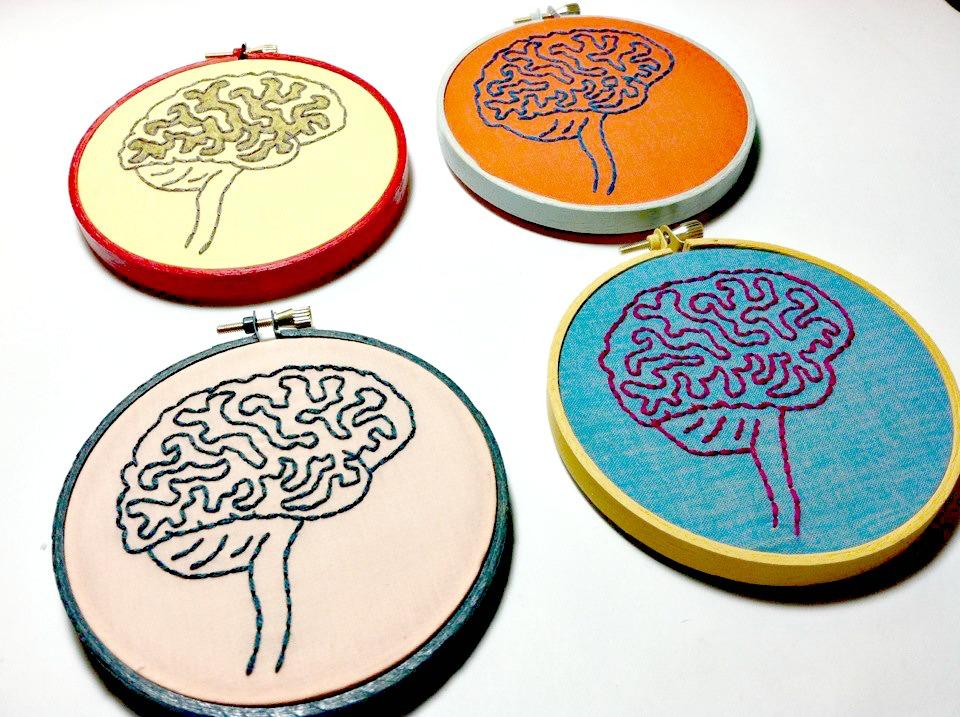 sintomas alzheimer brain