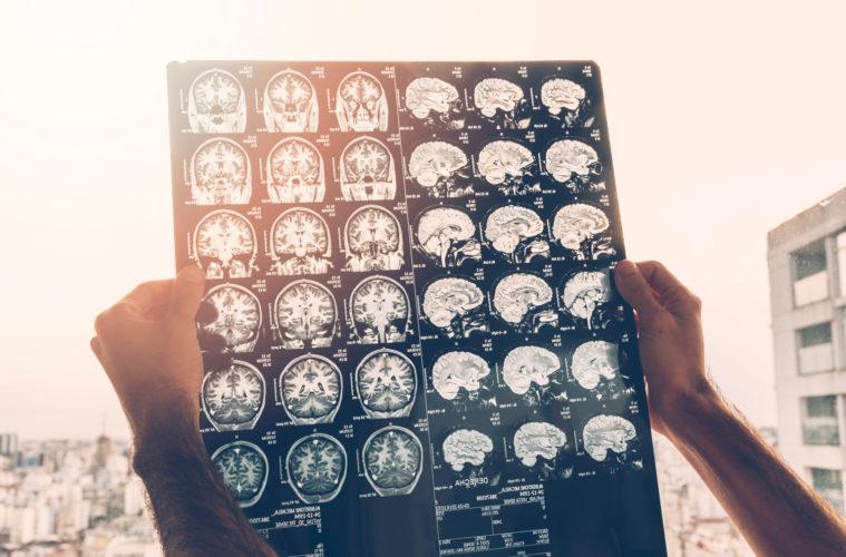 enfermedad de alzheimer LATE