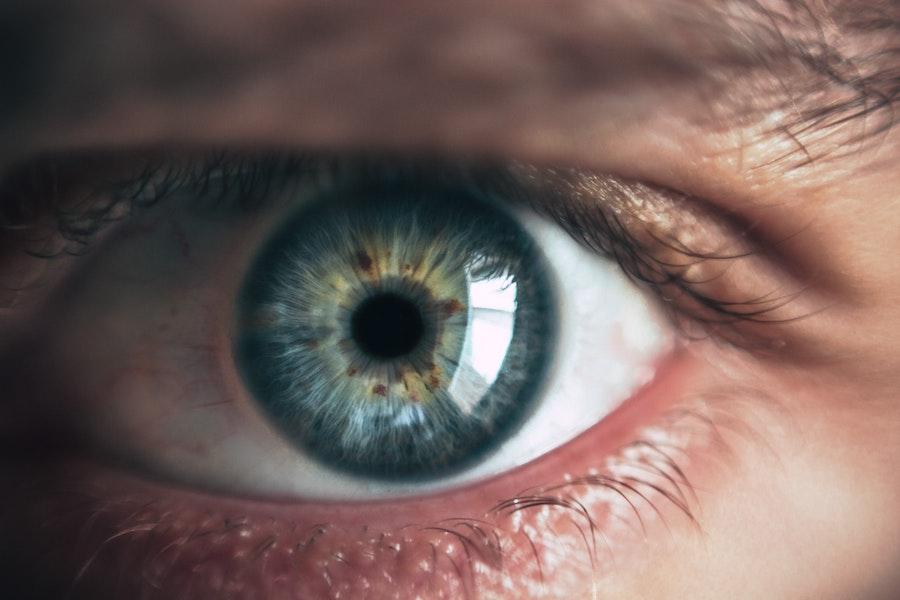 glaucoma demencia